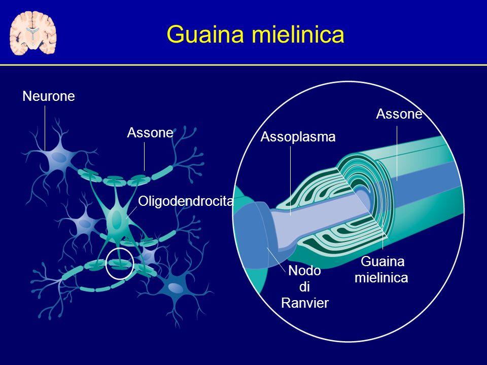 Guaina mielinica Oligodendrocita Neurone Assone Guaina mielinica Assoplasma Nodo di Ranvier