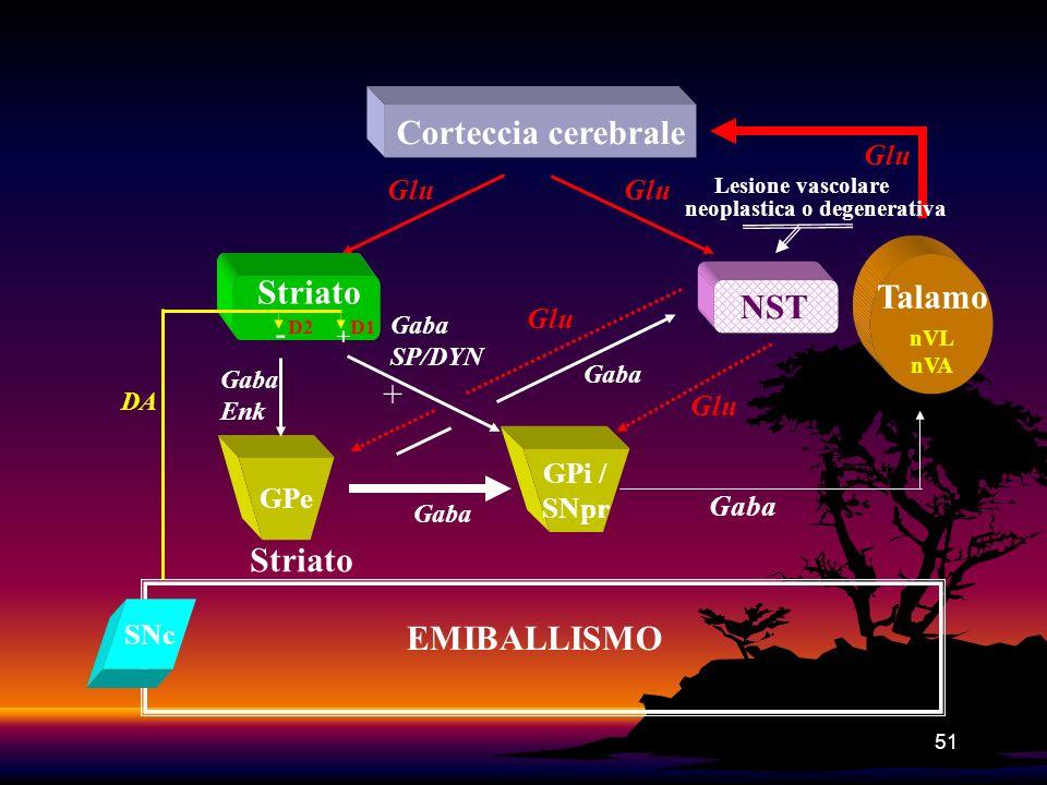 51 GPi / SNpr Corteccia cerebrale NST Glu Gaba SP/DYN Talamo nVL nVA Gaba Glu Gaba Enk Gaba SNc DA Striato Glu + EMIBALLISMO Lesione vascolare neoplas