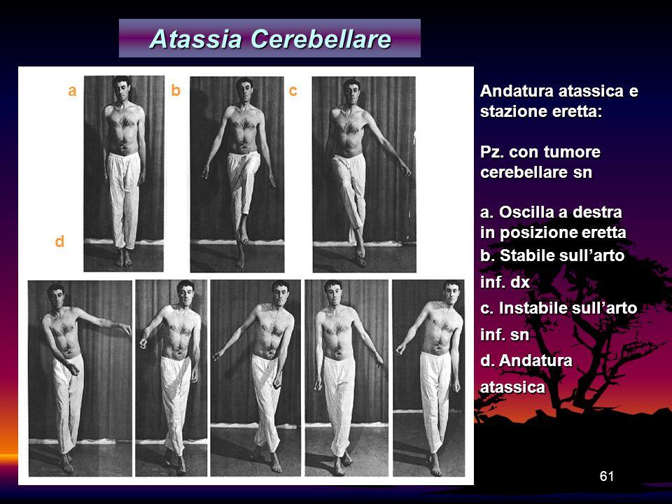 61 Atassia Cerebellare Andatura atassica e stazione eretta: Pz. con tumore cerebellare sn a. Oscilla a destra in posizione eretta b. Stabile sullarto