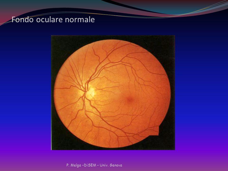 Peggioramento della retinopatia ed indici di controllo glicemico Peggioramento della retinopatia ed indici di controllo glicemico (per 100 pazienti-an