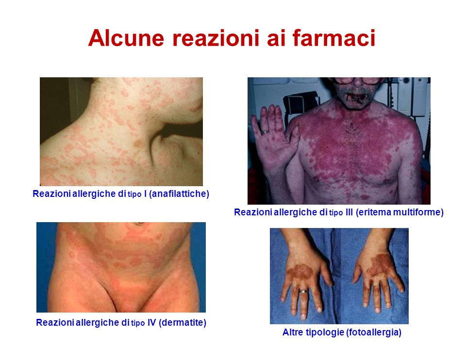 Alcune reazioni ai farmaci Reazioni allergiche di tipo I (anafilattiche) Reazioni allergiche di tipo III (eritema multiforme) Reazioni allergiche di tipo IV (dermatite) Altre tipologie (fotoallergia)