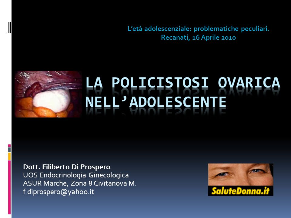 Dott. Filiberto Di Prospero UOS Endocrinologia Ginecologica ASUR Marche, Zona 8 Civitanova M. f.diprospero@yahoo.it Letà adolescenziale: problematiche