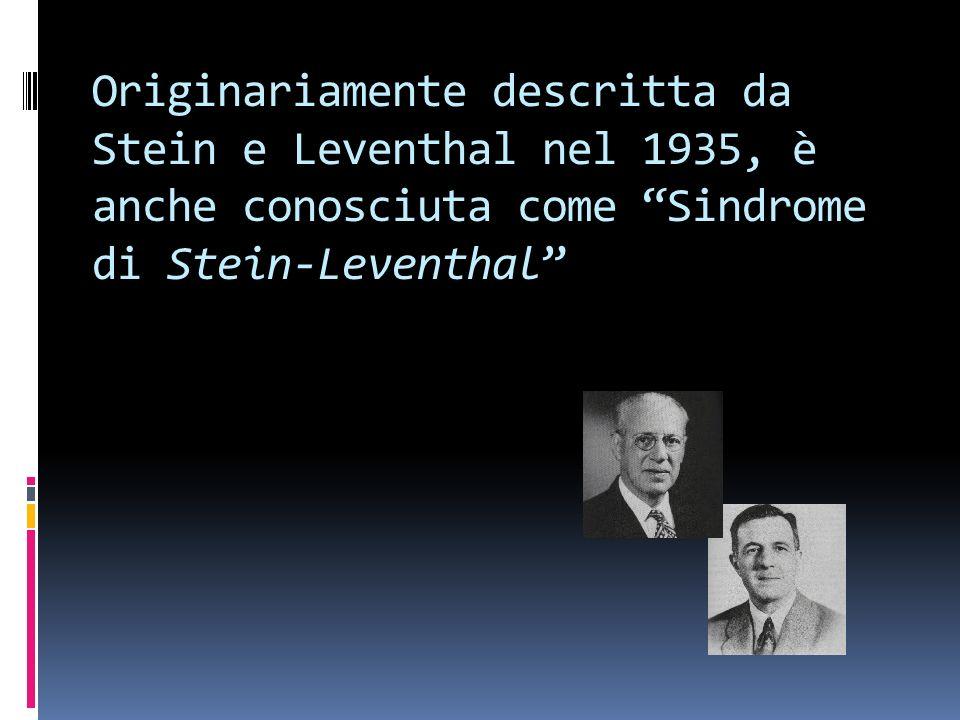 Originariamente descritta da Stein e Leventhal nel 1935, è anche conosciuta come Sindrome di Stein-Leventhal