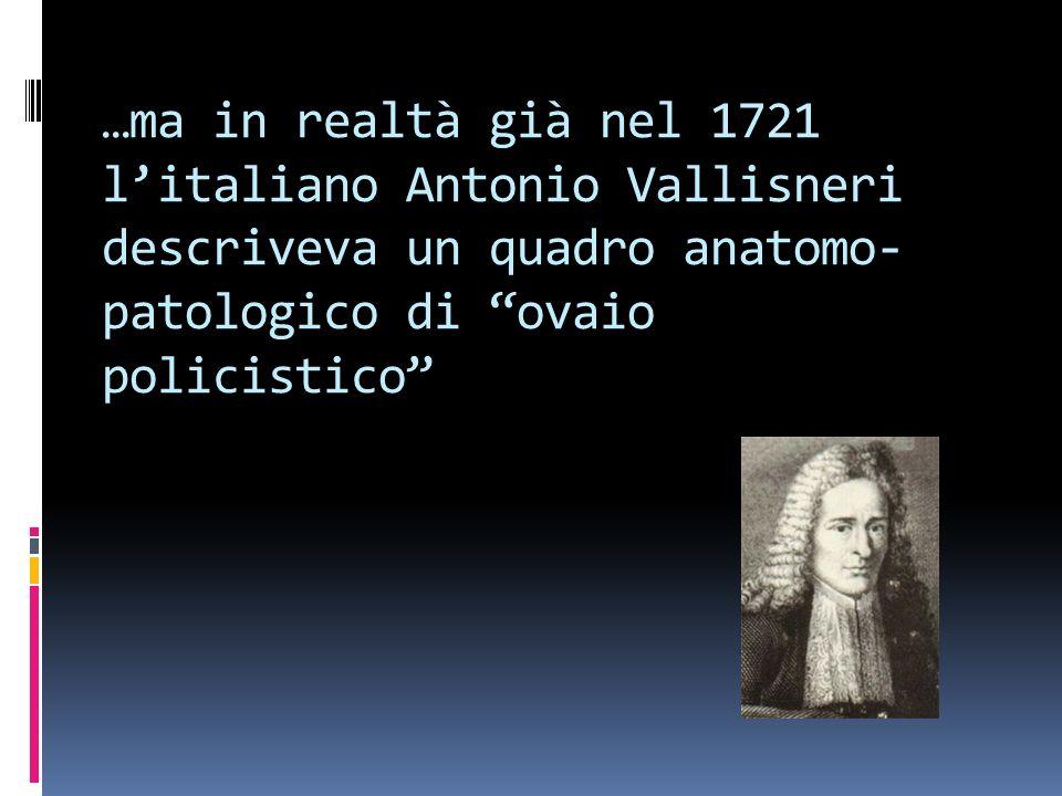 …ma in realtà già nel 1721 litaliano Antonio Vallisneri descriveva un quadro anatomo- patologico di ovaio policistico