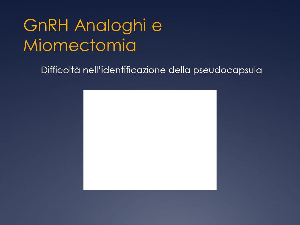 GnRH Analoghi e Miomectomia Difficoltà nellidentificazione della pseudocapsula