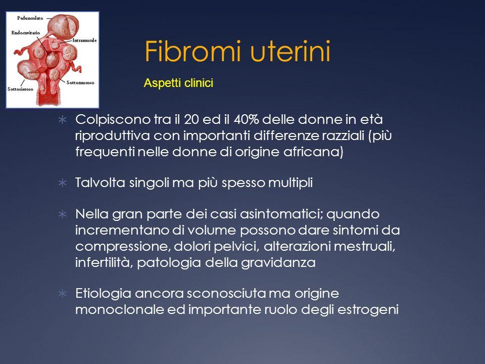 Fibromi uterini Colpiscono tra il 20 ed il 40% delle donne in età riproduttiva con importanti differenze razziali (più frequenti nelle donne di origin