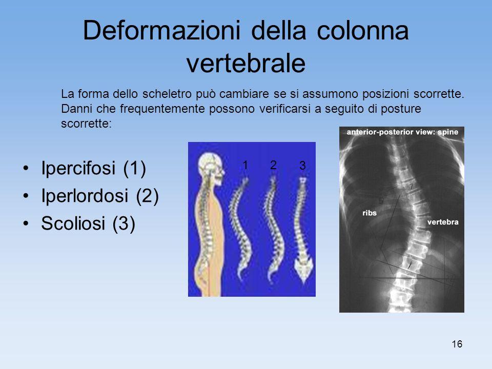 16 Deformazioni della colonna vertebrale Ipercifosi (1) Iperlordosi (2) Scoliosi (3) La forma dello scheletro può cambiare se si assumono posizioni sc