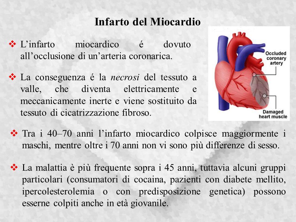 Infarto del Miocardio Linfarto miocardico é dovuto allocclusione di unarteria coronarica.
