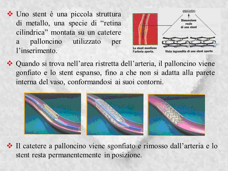 Uno stent è una piccola struttura di metallo, una specie di retina cilindrica montata su un catetere a palloncino utilizzato per linserimento.