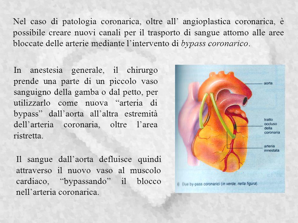 Nel caso di patologia coronarica, oltre all angioplastica coronarica, è possibile creare nuovi canali per il trasporto di sangue attorno alle aree bloccate delle arterie mediante lintervento di bypass coronarico.