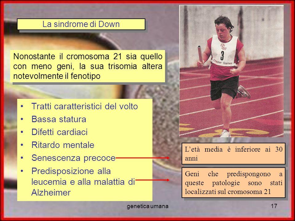 genetica umana17 La sindrome di Down Tratti caratteristici del volto Bassa statura Difetti cardiaci Ritardo mentale Senescenza precoce Predisposizione