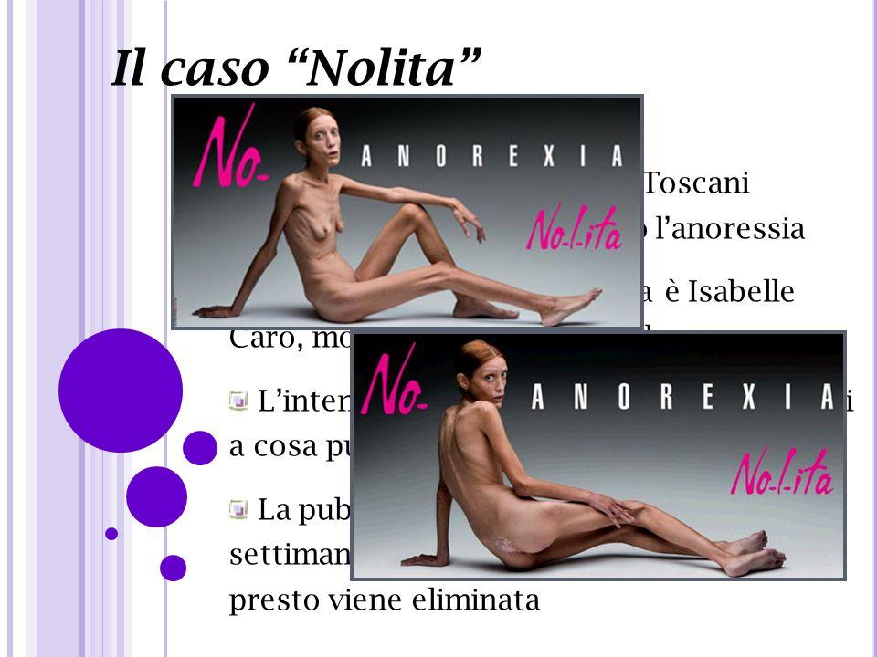 Il caso Nolita Campagna pubblicitaria di Toscani scioccante per dire No contro lanoressia Testimonial della campagna è Isabelle Caro, modella francese