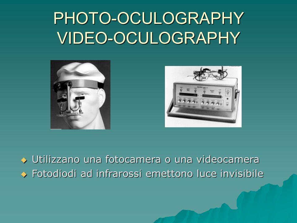 PHOTO-OCULOGRAPHY VIDEO-OCULOGRAPHY Utilizzano una fotocamera o una videocamera Utilizzano una fotocamera o una videocamera Fotodiodi ad infrarossi em
