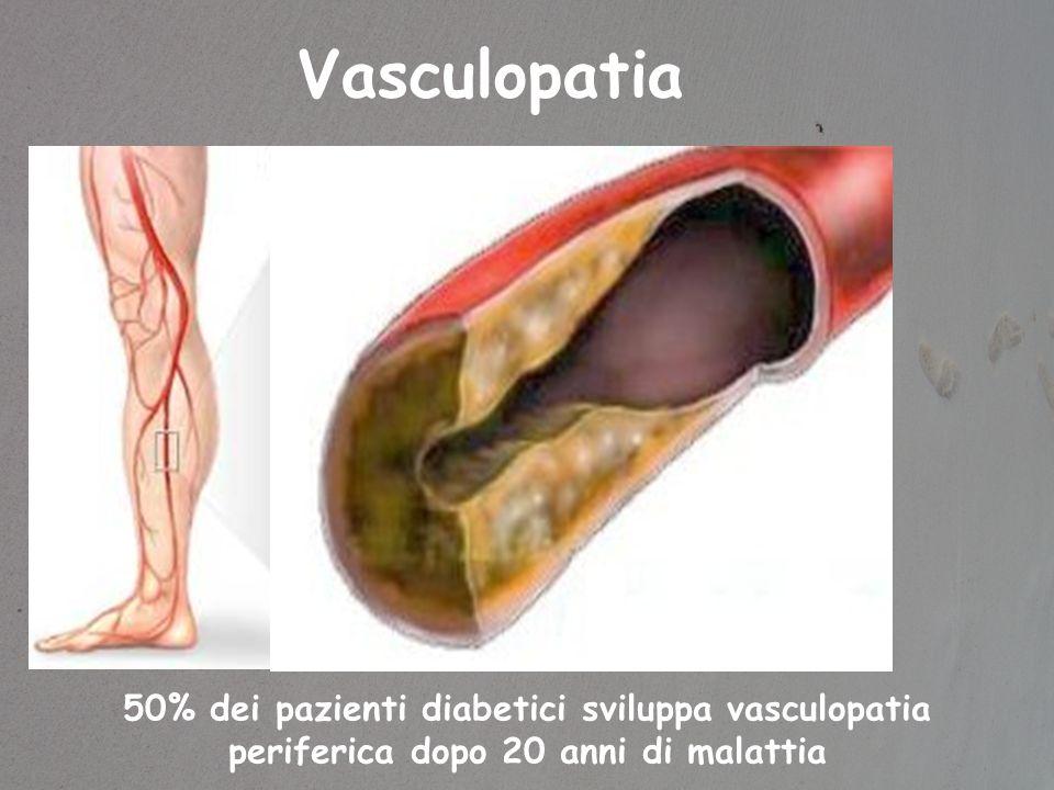 Vasculopatia 50% dei pazienti diabetici sviluppa vasculopatia periferica dopo 20 anni di malattia