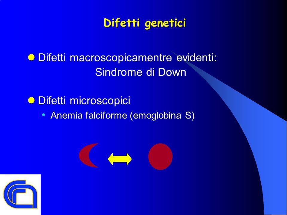 Difetti macroscopicamentre evidenti: Sindrome di Down Difetti microscopici Anemia falciforme (emoglobina S)