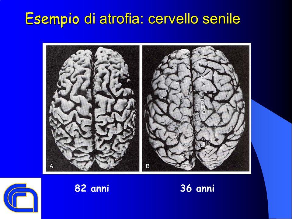 Esempio di atrofia: cervello senile 36 anni82 anni