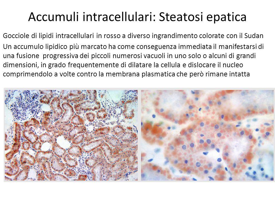 Accumuli intracellulari: colesterolo Accumuli intracellulari di colesterolo possono localizzarsi in istiociti sub-epidermici ed in posizione paratendinee, ove essi possono produrre masse pseudotumorali note come Xantomi.
