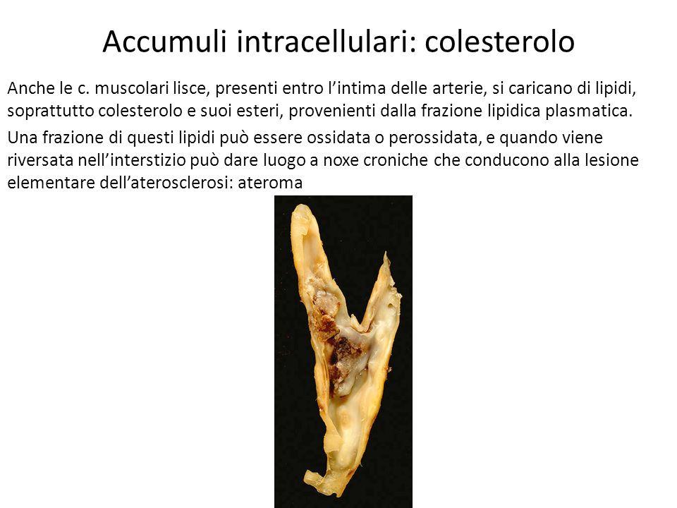 Accumuli intracellulari: proteine