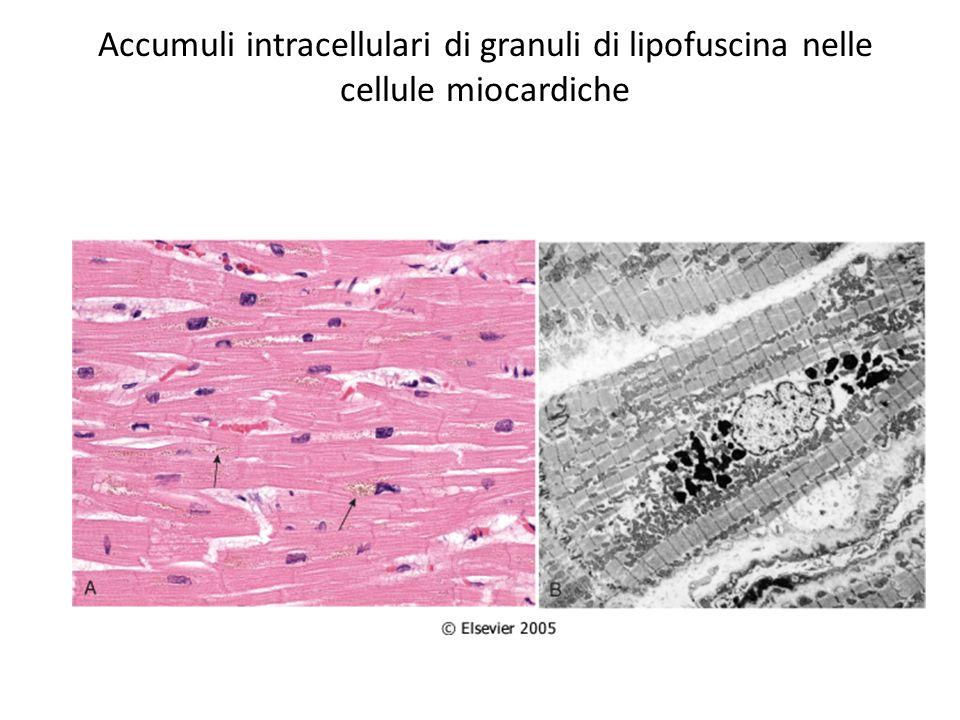 Accumuli intracellulari di emosiderina nelle cellule epatiche