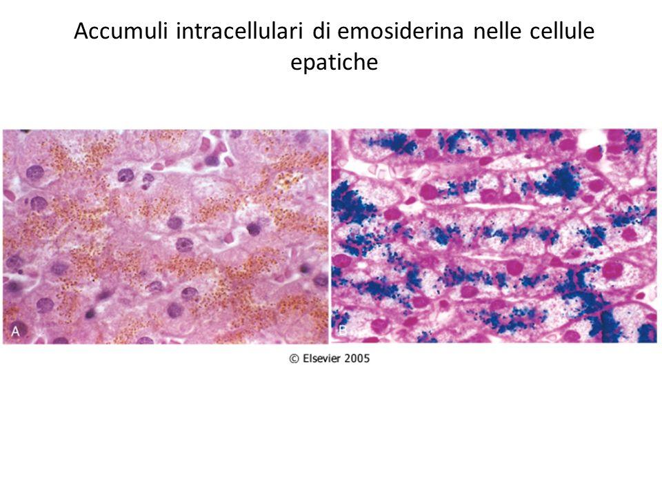 Accumuli intracellulari di proteine