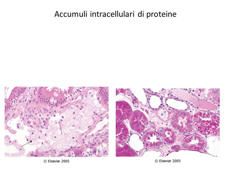 Patologia da alterazioni subcellulari Le principali alterazioni sono a carico di: 1.