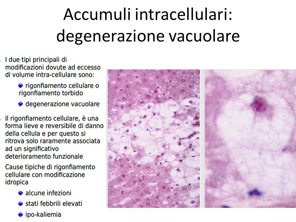 Accumuli intracellulari: Trigliceridi