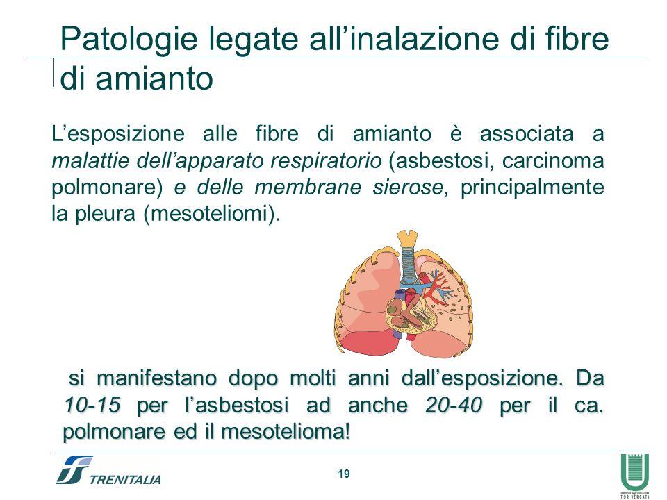 19 Lesposizione alle fibre di amianto è associata a malattie dellapparato respiratorio (asbestosi, carcinoma polmonare) e delle membrane sierose, prin