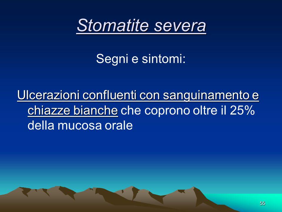 55 Stomatite severa Segni e sintomi: Ulcerazioni confluenti con sanguinamento e chiazze bianche Ulcerazioni confluenti con sanguinamento e chiazze bia