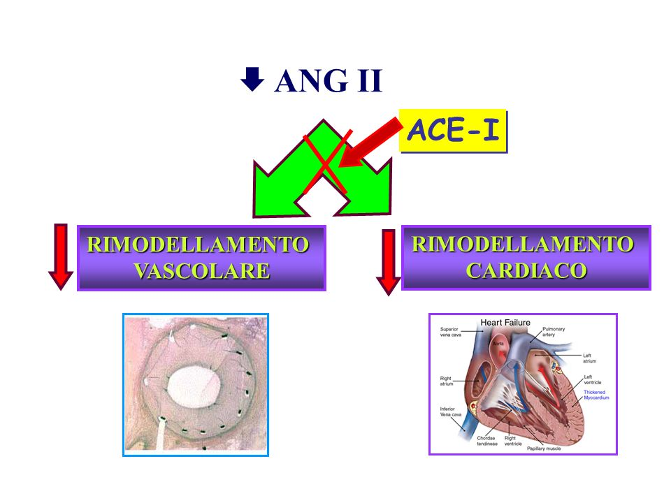 RIMODELLAMENTOVASCOLARE RIMODELLAMENTOCARDIACO ANG II ACE-I