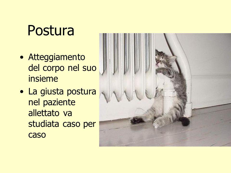 Postura Atteggiamento del corpo nel suo insieme La giusta postura nel paziente allettato va studiata caso per caso