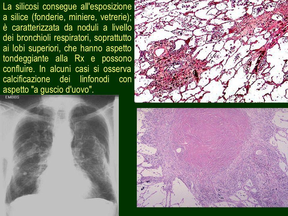 10 La silicosi consegue all'esposizione a silice (fonderie, miniere, vetrerie); è caratterizzata da noduli a livello dei bronchioli respiratori, sopra