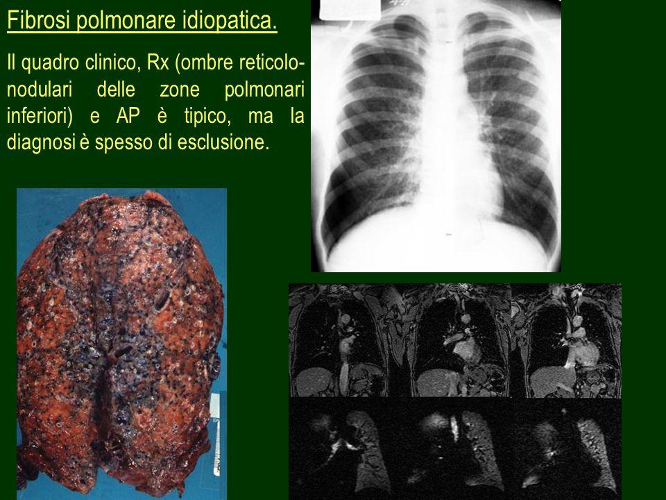 12 Fibrosi polmonare idiopatica. Il quadro clinico, Rx (ombre reticolo- nodulari delle zone polmonari inferiori) e AP è tipico, ma la diagnosi è spess