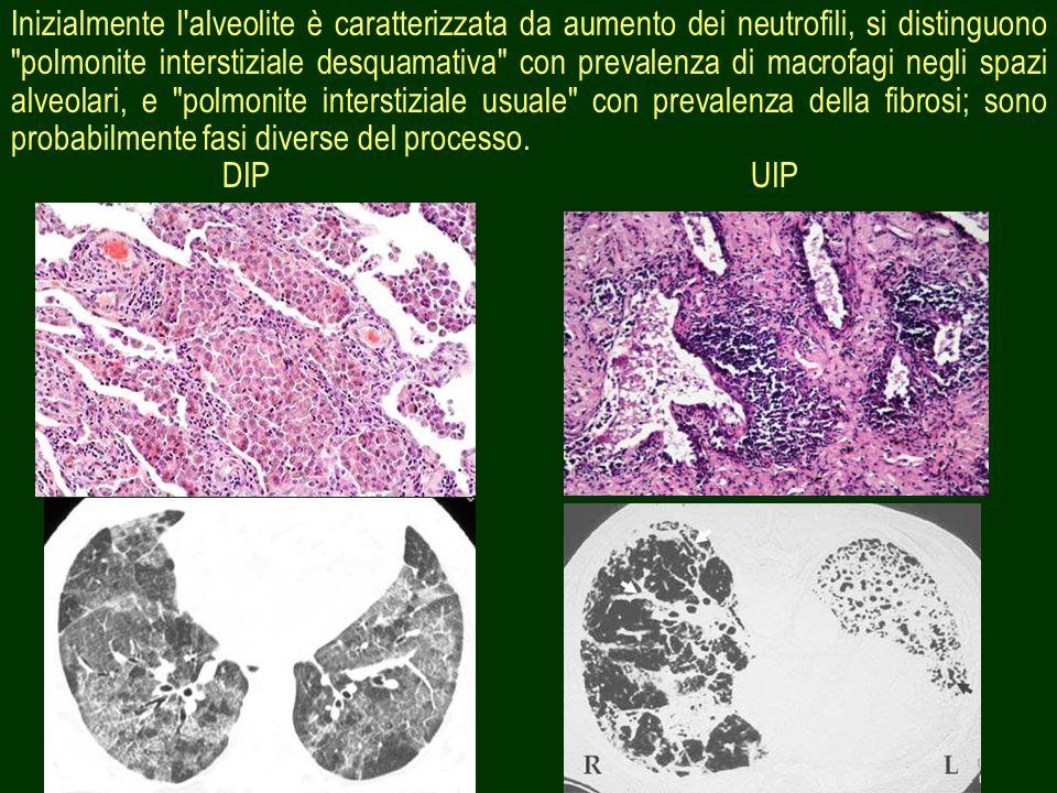 13 Inizialmente l'alveolite è caratterizzata da aumento dei neutrofili, si distinguono