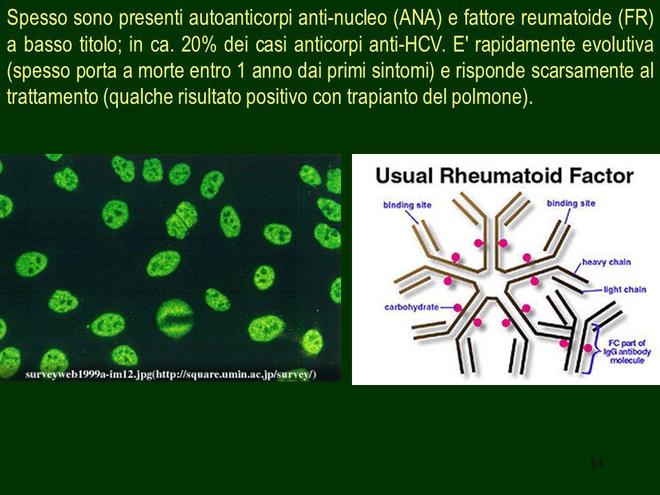 14 Spesso sono presenti autoanticorpi anti-nucleo (ANA) e fattore reumatoide (FR) a basso titolo; in ca. 20% dei casi anticorpi anti-HCV. E' rapidamen