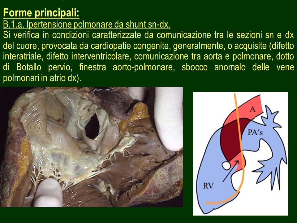 26 Forme principali: B.1.a. Ipertensione polmonare da shunt sn-dx. Si verifica in condizioni caratterizzate da comunicazione tra le sezioni sn e dx de