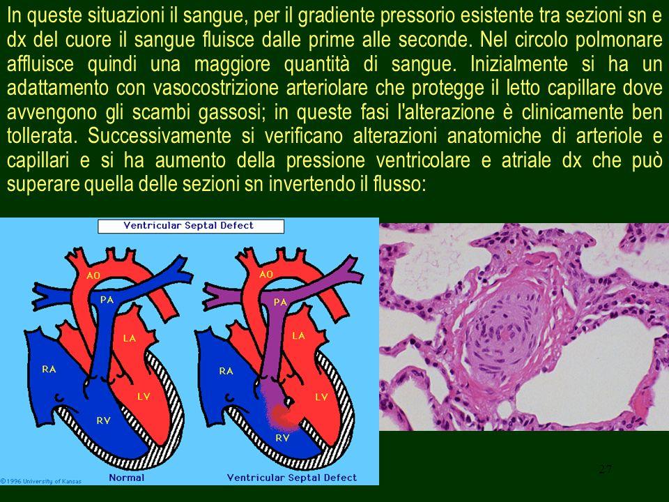 27 In queste situazioni il sangue, per il gradiente pressorio esistente tra sezioni sn e dx del cuore il sangue fluisce dalle prime alle seconde. Nel