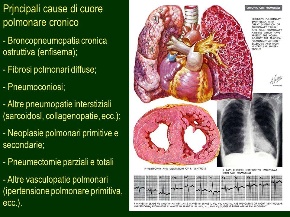 35 Prjncipali cause di cuore polmonare cronico - Broncopneumopatia cronica ostruttiva (enfisema); - Fibrosi polmonari diffuse; - Pneumoconiosi; - Altr