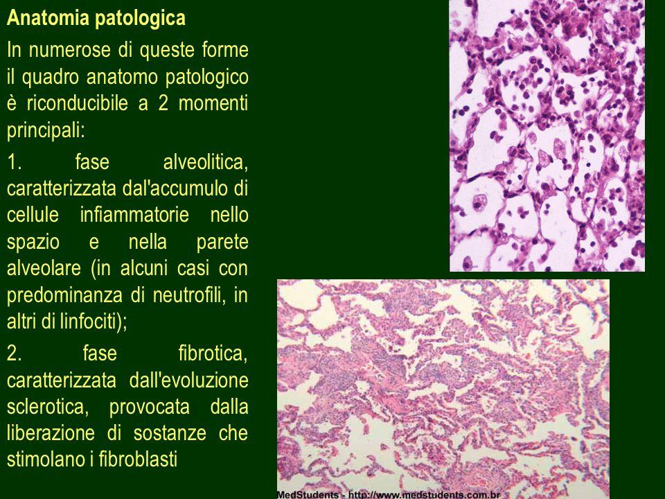 5 Anatomia patologica In numerose di queste forme il quadro anatomo patologico è riconducibile a 2 momenti principali: 1. fase alveolitica, caratteriz