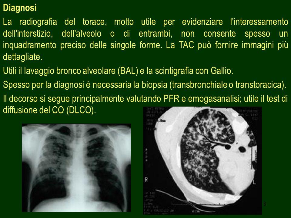 8 Diagnosi La radiografia del torace, molto utile per evidenziare l'interessamento dell'interstizio, dell'alveolo o di entrambi, non consente spesso u