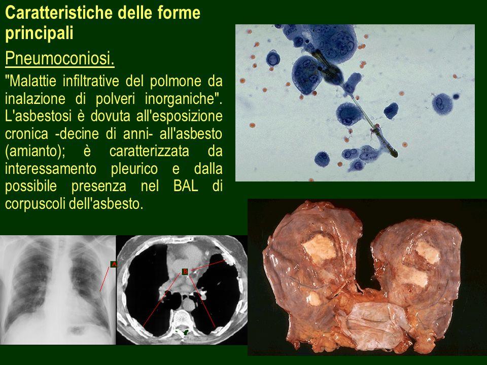 9 Caratteristiche delle forme principali Pneumoconiosi.