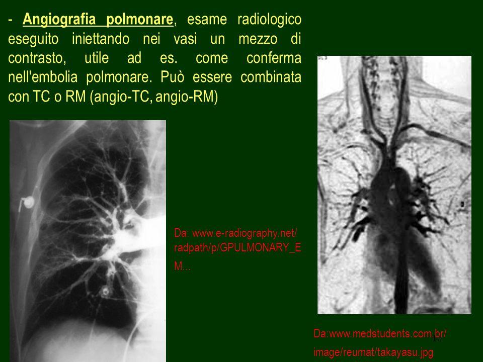 10 - Angiografia polmonare, esame radiologico eseguito iniettando nei vasi un mezzo di contrasto, utile ad es. come conferma nell'embolia polmonare. P