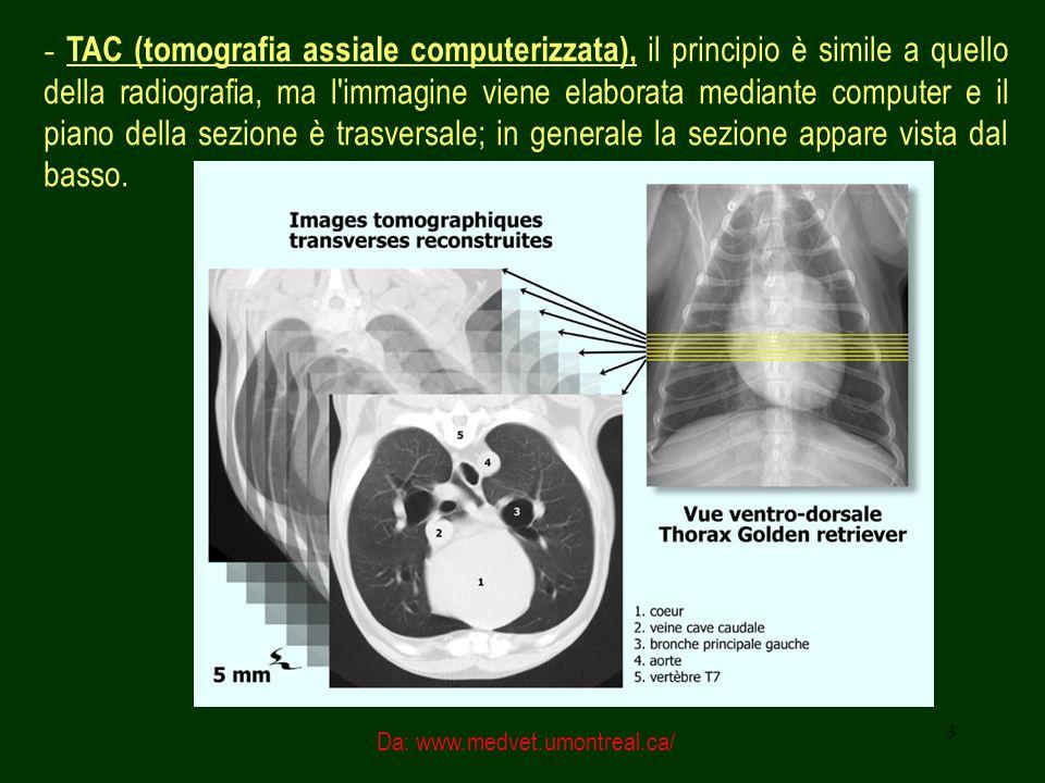 4 - TAC (tomografia assiale computerizzata), il principio è simile a quello della radiografia, ma l immagine viene elaborata mediante computer e il piano della sezione è trasversale; indagine molto utile per valutare lesioni nodulari, pleure, interstizio, parete toracica, mediastino.