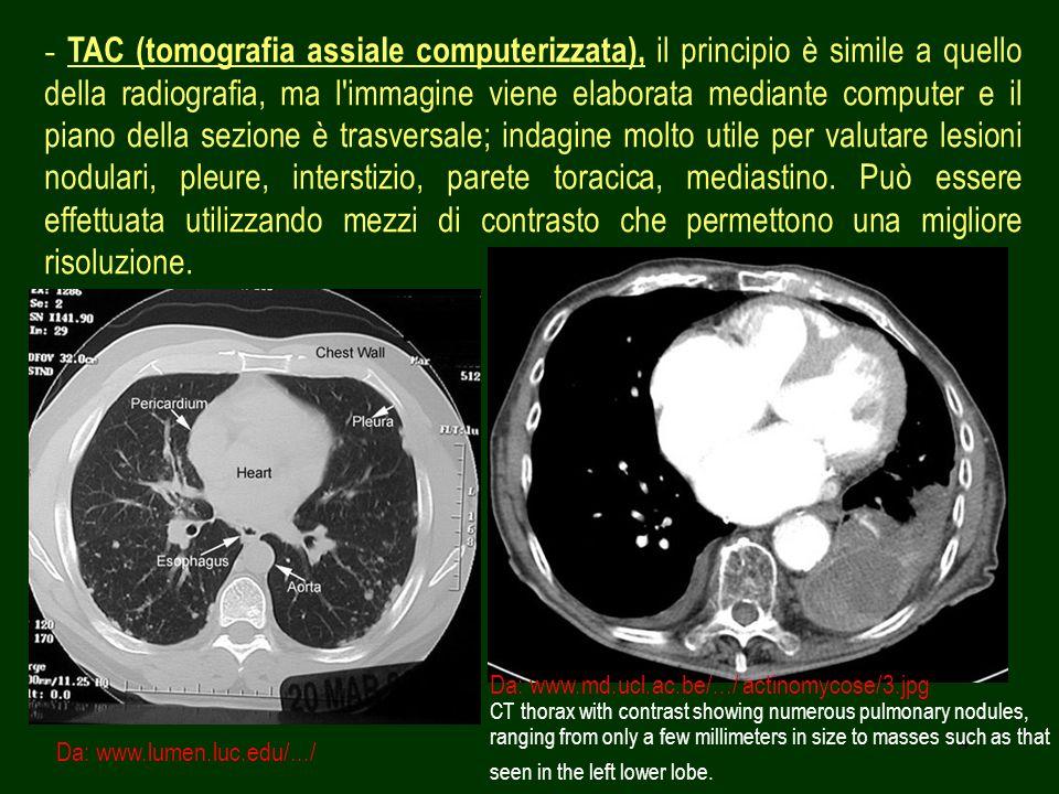 4 - TAC (tomografia assiale computerizzata), il principio è simile a quello della radiografia, ma l'immagine viene elaborata mediante computer e il pi