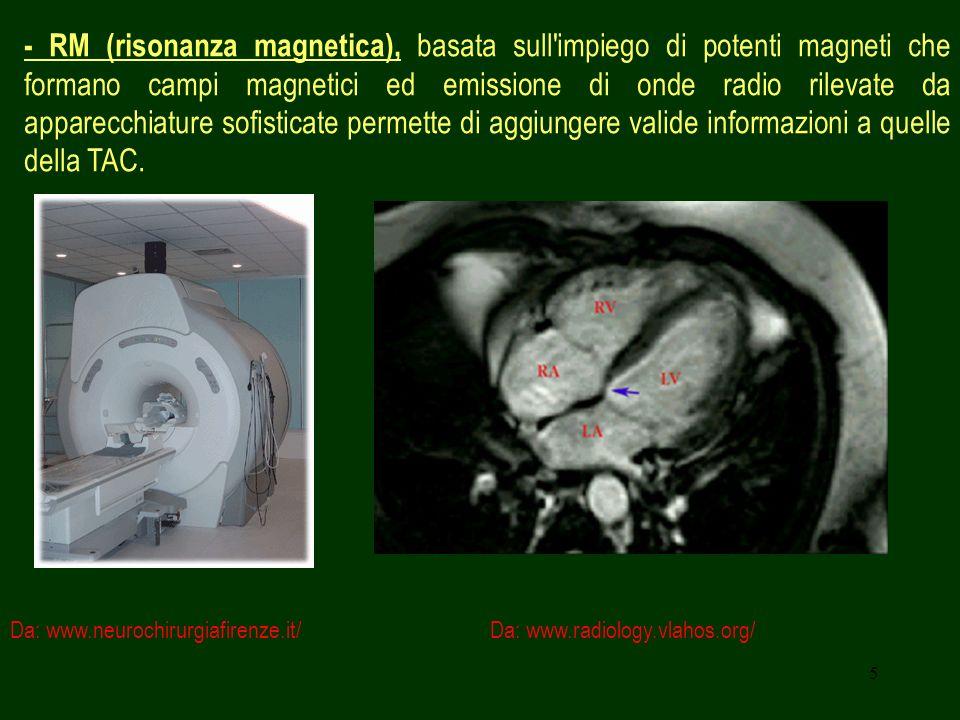 6 - Scintigrafia polmonare, si distinguono: scintigrafia perfusionale, eseguita utilizzando aggregati di albumina marcati con tecnezio e iniettati endovena, per valutare la vascolarizzazione; Da: www.codacons.it/medicina/ embolia/polmonedx.jpg Da: www.med.harvard.edu/ Paziente di 64aa immobilizzato da 3 mesi per paraplegia che ha presentato dispnea improvvisa ed edema gamba dx.