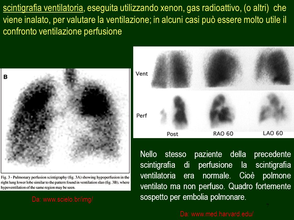 7 scintigrafia ventilatoria, eseguita utilizzando xenon, gas radioattivo, (o altri) che viene inalato, per valutare la ventilazione; in alcuni casi pu