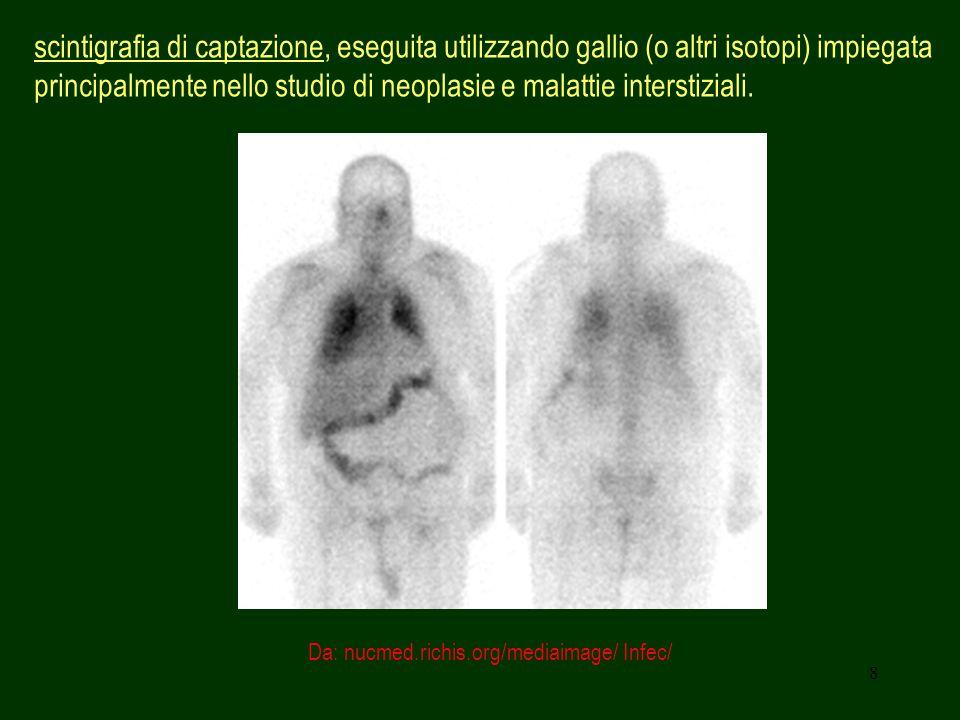 8 scintigrafia di captazione, eseguita utilizzando gallio (o altri isotopi) impiegata principalmente nello studio di neoplasie e malattie interstizial