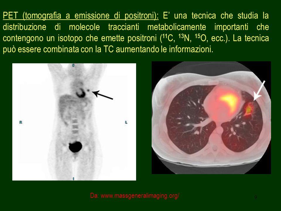 9 PET (tomografia a emissione di positroni): E una tecnica che studia la distribuzione di molecole traccianti metabolicamente importanti che contengon