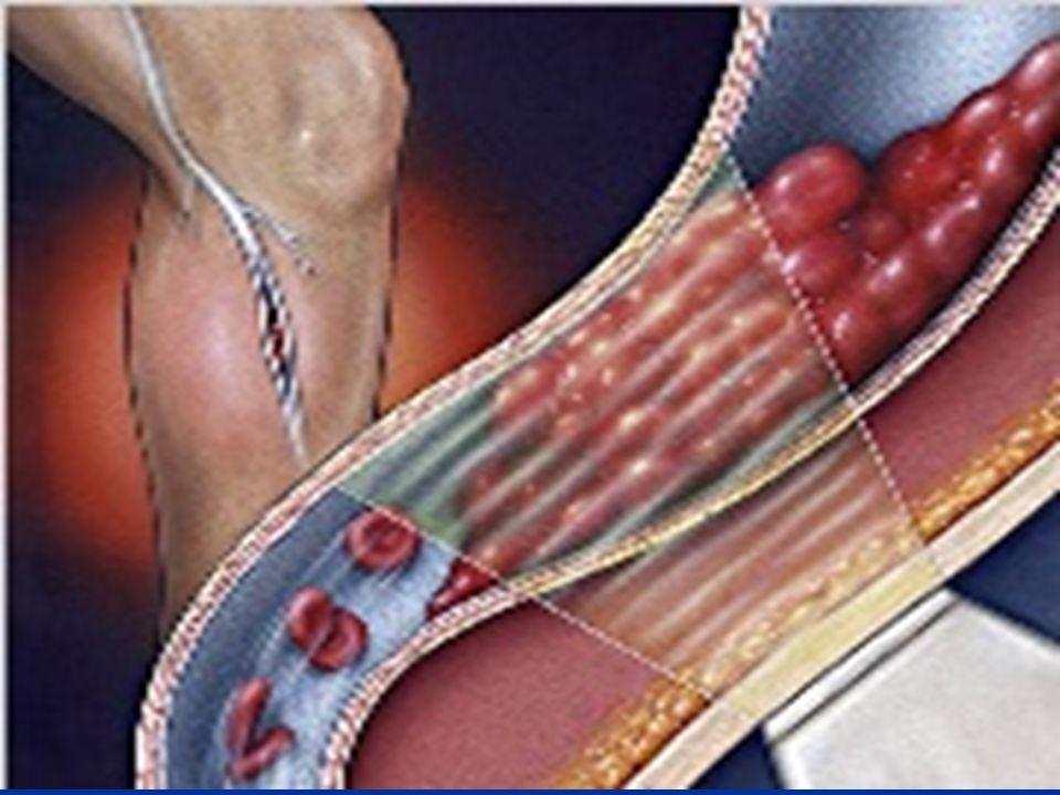 41 L embolia polmonare è nella maggior parte dei casi la complicanza di una trombosi venosa profonda degli arti inferiori; si determina quando, da un trombo formatosi in una vena profonda, si distaccano frammenti più o meno grossi L embolia polmonare è nella maggior parte dei casi la complicanza di una trombosi venosa profonda degli arti inferiori; si determina quando, da un trombo formatosi in una vena profonda, si distaccano frammenti più o meno grossi