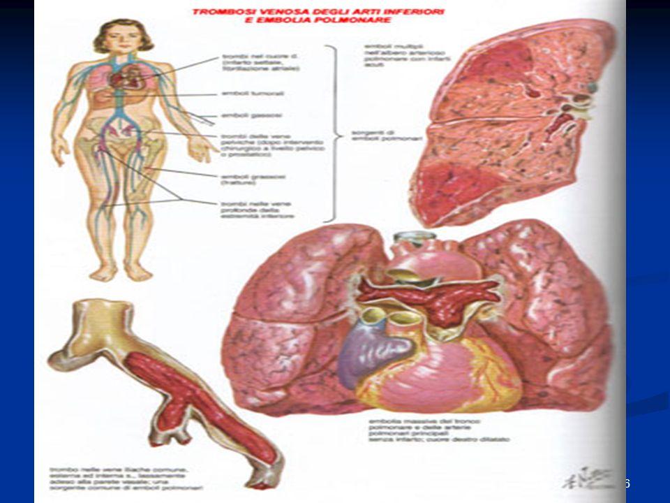 71 Il rischio di embolia polmonare è assai più elevato se la trombosi non è stata prontamente diagnosticata e non adeguatamente trattata: si ritiene che in assenza di una corretta terapia anticoagulante, oltre il 40% delle trombosi venose profonde determino embolia polmonare.