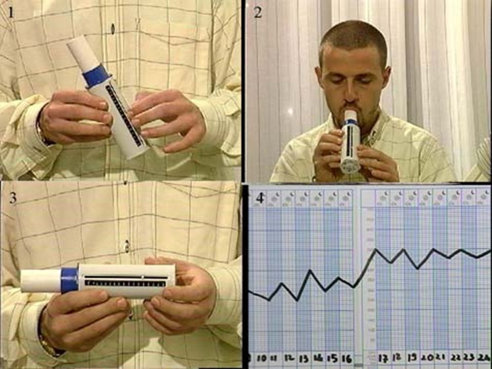 1 102 MISURAZIONE DEL PICCO DI FLUSSO ESPIRATORIO La misurazione del picco di flusso espiratorio (PEF) viene eseguita soffiando con la massima forza p